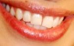 Was für ein schöner Mund – der hat schon manchem Mann bei GZSZ den Kopf verdreht! Weißt du zu wem er gehört?