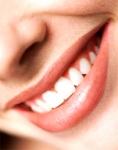 Wie sehen deine Zähne aus?