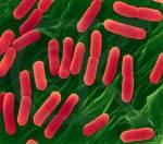Gewinnung und Handhabung von mikrobiologischem Untersuchungsmaterial